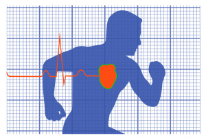 Elettrocardiogramma - Centro Medico Fisios - Ravenna